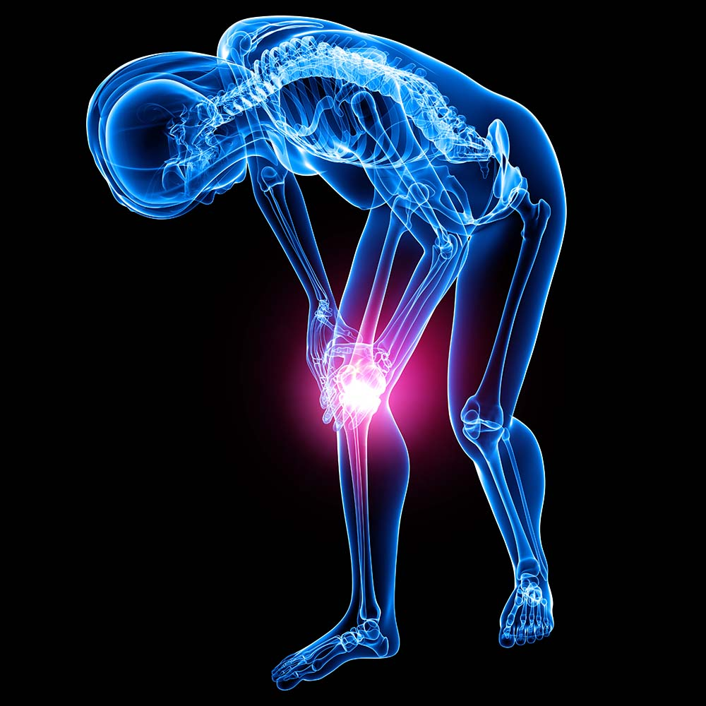 knee and hip replacement care physical therapy rehabilitation in brooklyn nyc