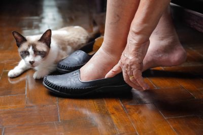 Swollen ankles of an elderly women with a cat in background