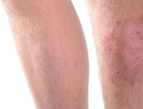 Skin Infections in Adults and Seniors