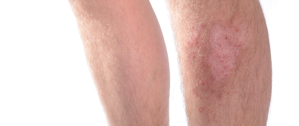 Male legs with skin infection