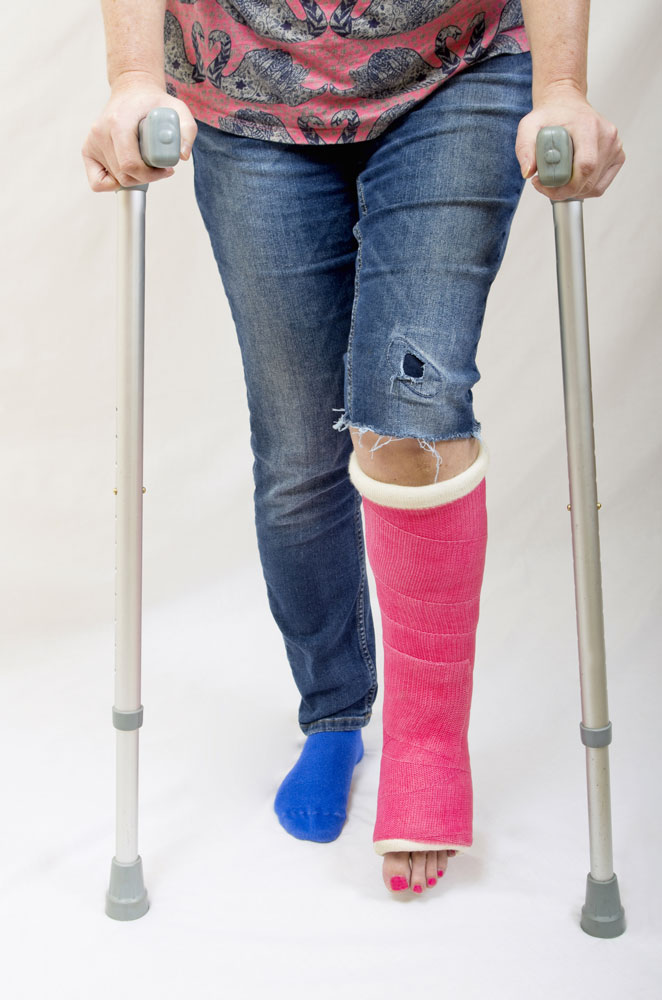 Women with broken leg bone and crutches