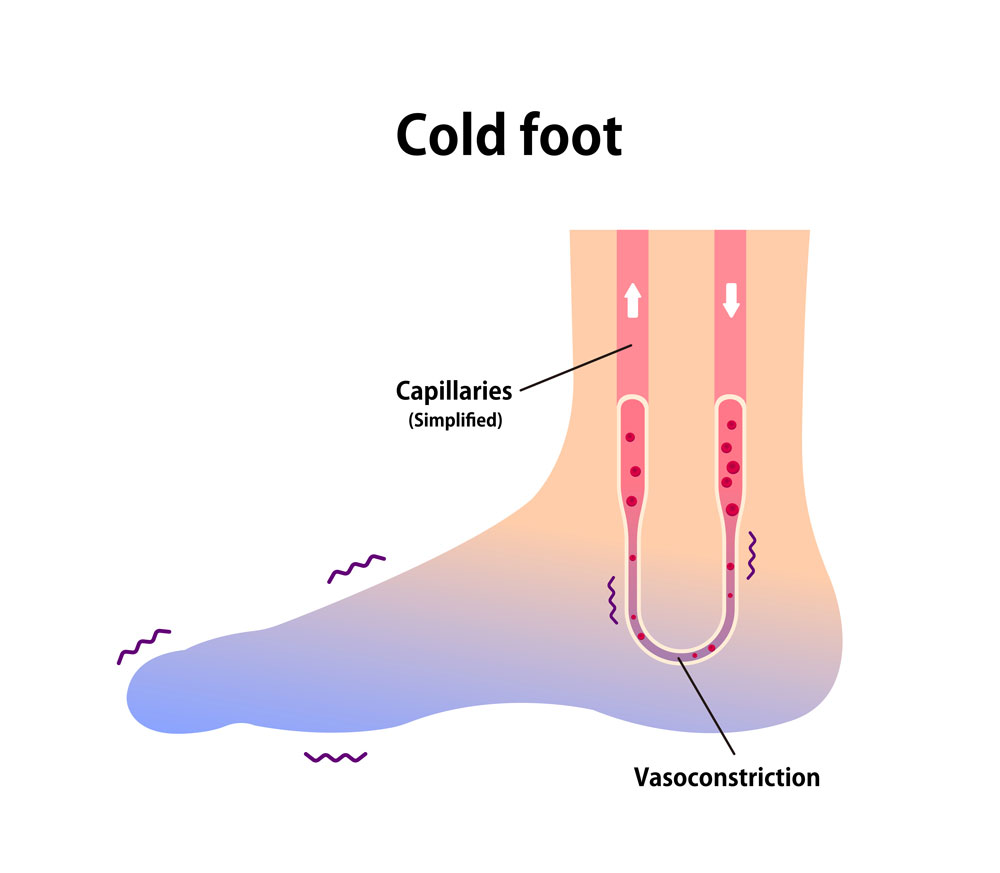 Vector demonstrating poor blood circulation because of cold foot
