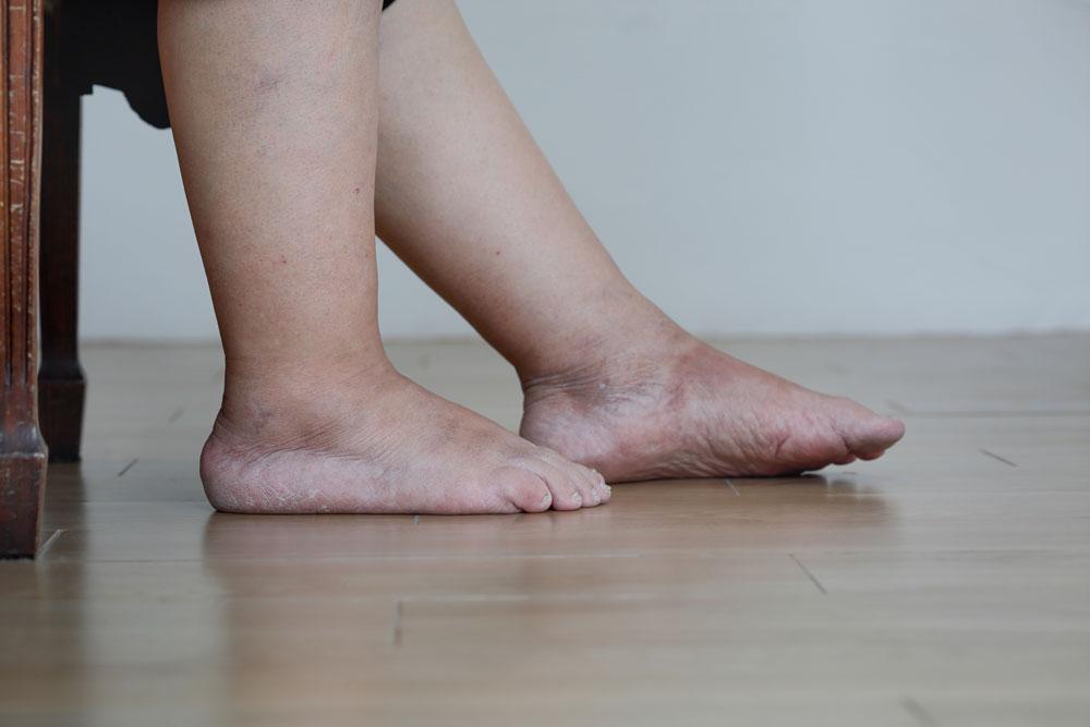 Elderly women with leg swelling
