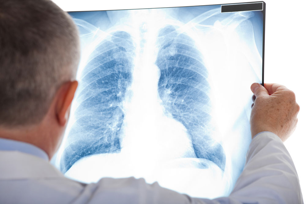 Doctor examining a lung radiography to see if the patient have chest infection