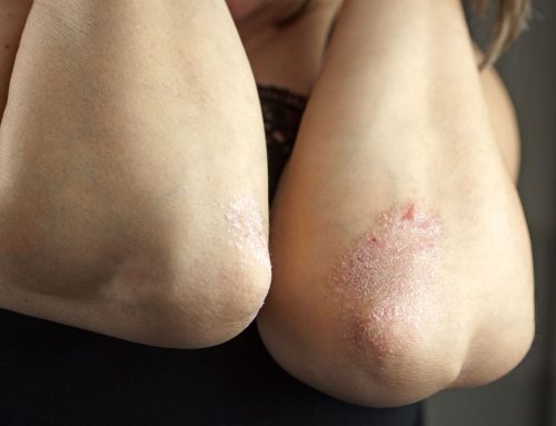 Psoriasis Symptoms And Other Diseases Linked To It