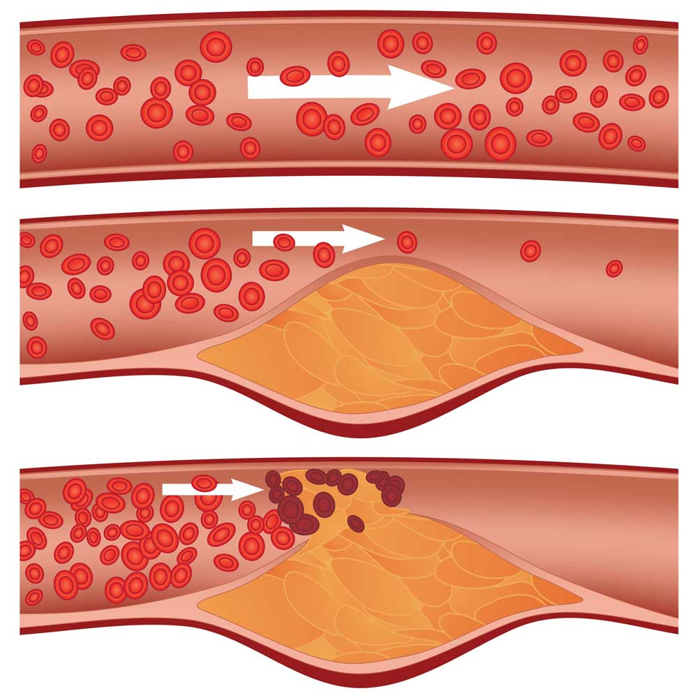 Visualization of narrowing arteries and blood plaque