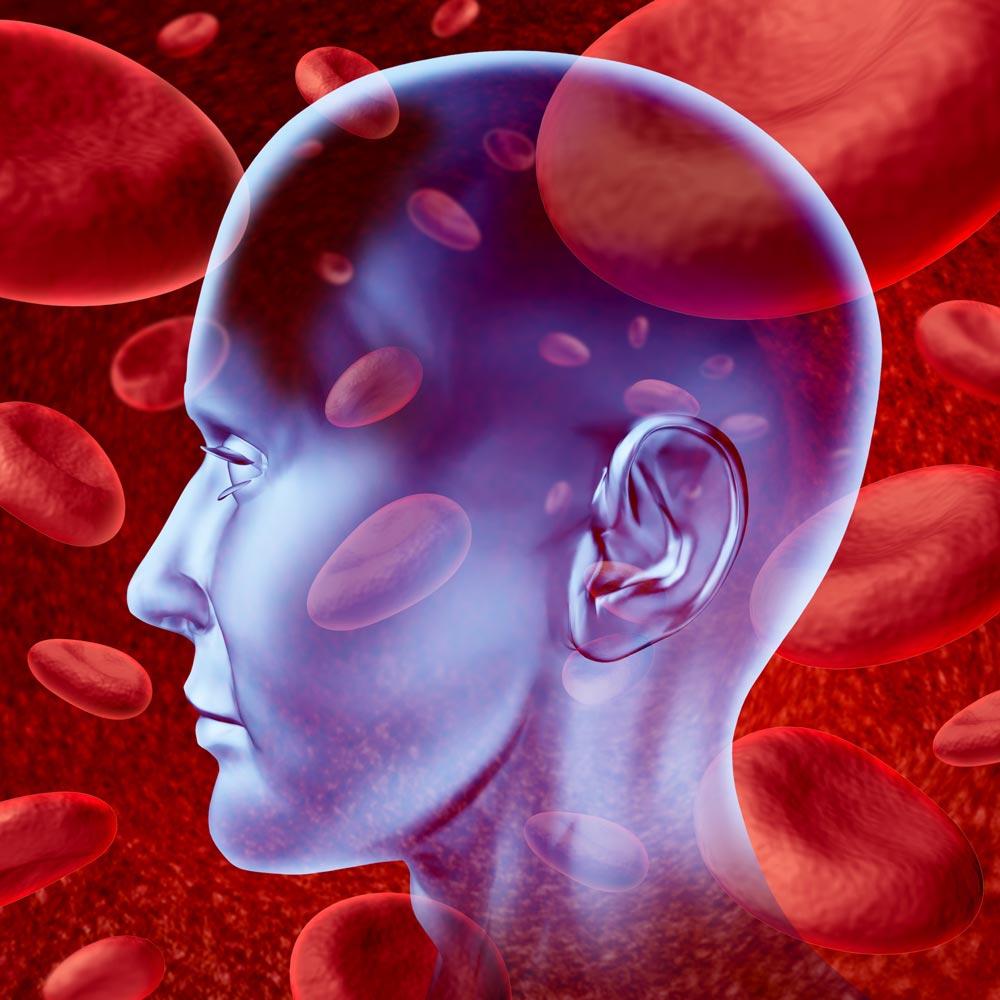 Human brain warning signs of stroke blood clotting visualization